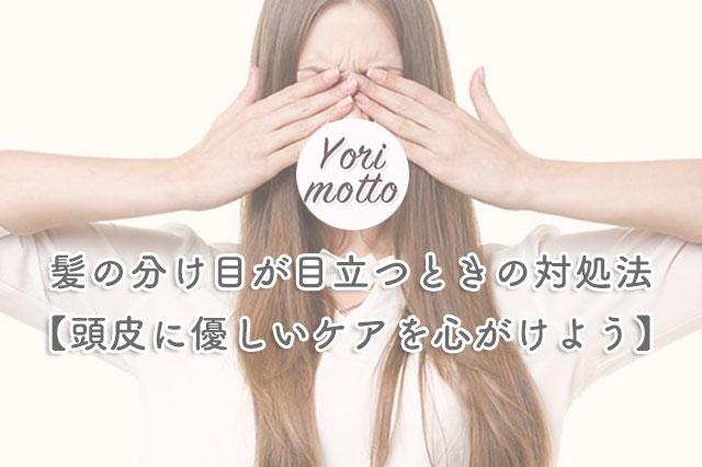 髪の分け目が目立つときの対処法【頭皮に優しいケアを心がけよう】